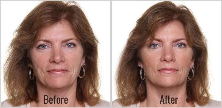 tratament iluminare faciala oradea intraceuticals dermalift