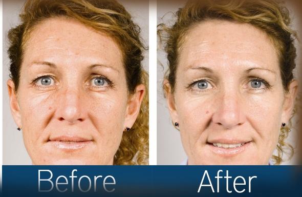 tratament oradea dermalift acnee psoriazis rozacee cuperoza