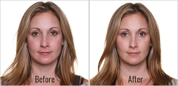 tratament de rejuvenare faciala intraceuticals oradea