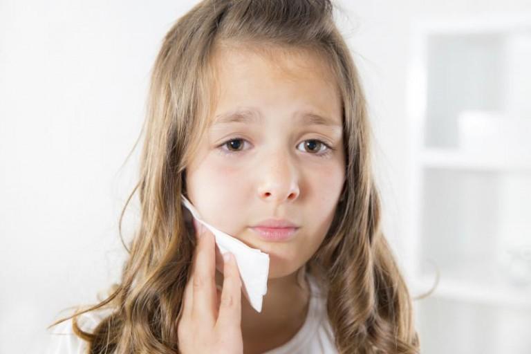 Cum tratăm dinții de lapte, cu puroi, ai copiilor?!